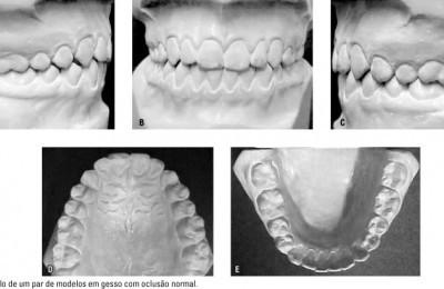 Gessos Odontológicos