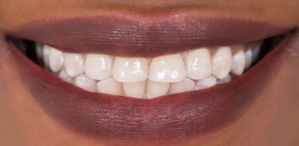 Cientistas britânicos criam substância que pode regenerar dentes