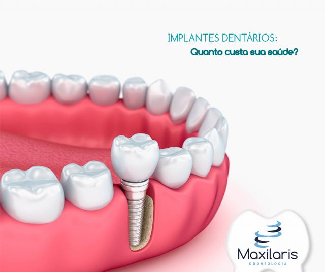 Implantes Dentários: quanto custa sua saúde? por Dr. Renato Jordão